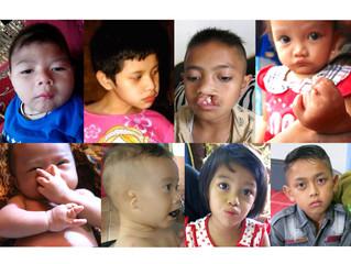Mohon bantuan medis untuk anak-anak korban merkuri di platform Kitabisa!