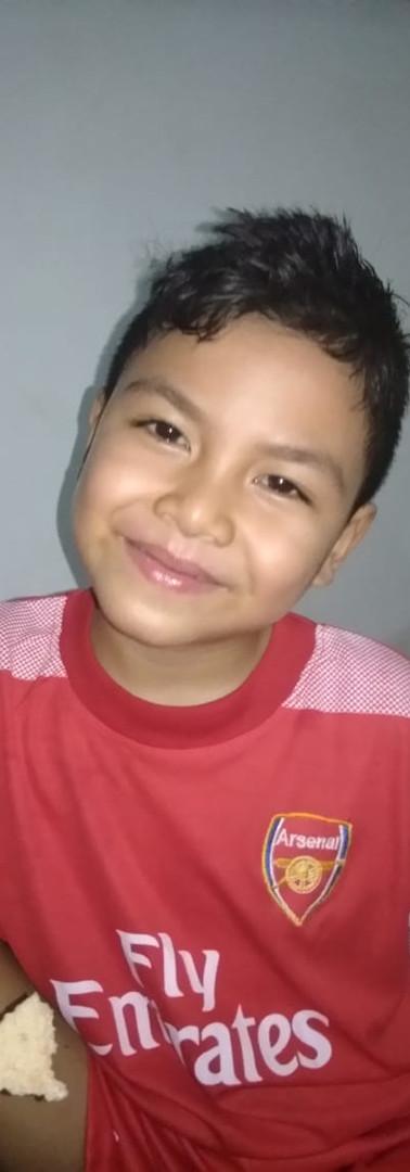 Nama: Egi  Umur: 9 tahun (26 April 2011)  Alamat: Sekotong, Lombok Barat  Riwayat penyakit: Kelainan tulang (Greenstick fracture)  Riwayat pengobatan: -Maret 2019, Egi menjalani operasi penyambungan bagian kaki yang patah di RSUD Provinsi NTB