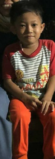 Nama: Angga  Umur: 6 tahun (2012)  Alamat: Sekotong, Lombok Barat  Riwayat penyakit: TB Paru  Riwayat pengobatan: -Sekitar pertengahan 2018, Angga di diagnosa TB Paru -Maret 2019, Balifokus membantu Angga untuk pengobatan lanjutan di RS Gerung, Lombok Barat. Selama 6 bulan, Angga harus terus meminum obat TB-nya. -Agustus 2019, Angga di diagnosis TB Kelenjar