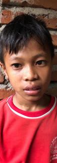 Nama: Rizki  Umur: 9 tahun (01 Desember 2009)  Alamat: Sekotong, Lombok Barat  Riwayat penyakit: Katarak bawaan (congenital cataract)  Riwayat pengobatan: -Januari  2019, Rizki menjalani operasi katarak mata kanannya di RSUD Gerung, Lombok Barat -Maret 2019, rizki kembali menjalani operasi katarak untuk mata kirinya. Di RSUD Gerung di Lombok Barat