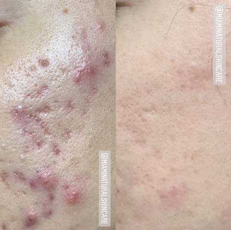 acne-before-after-1.jpg