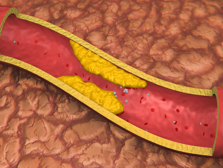 Are Heart Attacks Caused By Blocked Arteries?