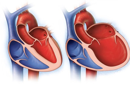 The Best Approach to Heart Failure