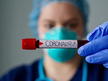 Teste rápido de sangue que mostra quem está com Covid pode ajudar na reabertura, diz pesquisador