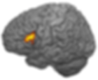 Brain activity in pars triangularis of Broca's area for distance in backwards anaphora
