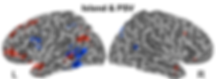 Overlap of subject isands and phrase structure in the brain