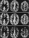 Functional Magnetic Resonance Imaging of Regional Cerebral Blood Oxygenation Changes During Breath Holding