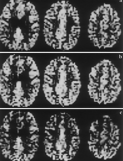 Recently, noninvasive MRI methods have been developed that are now capable of detecting and mapping regional hemodynamic responses to various stress tests, which involve the use of vasoactive substances such as acetazolamide or inhalation of carbon dioxide. The aim of this study was to assess regional cerebral blood oxygenation changes during breath holding at 1.5 T.