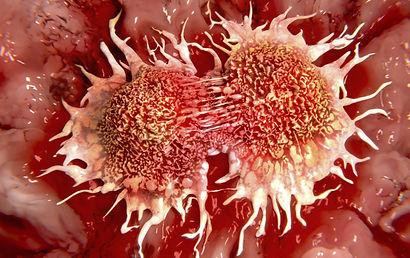 cancernfokus.jpg