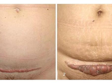 Qual a diferença da cicatriz hipertrófica e queloide?