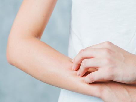 Entenda o que é MARSI (Lesão Cutânea relacionada a adesivos médicos)