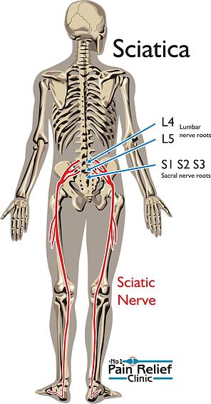 Sciatica nerve pain relief