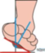 Cycling - Foot misalignment (tilt)
