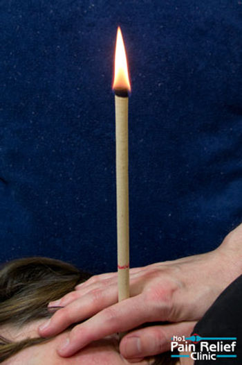 History of Thermo-Auricular Therapy (Ear Candling)