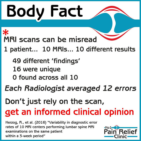 Body fact about MRI scans