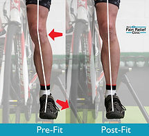 Bikefitting science - before and after