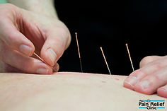 Acupuncture may Reduce Itching