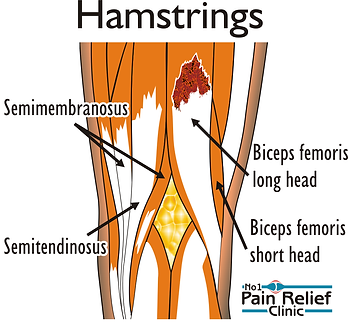 Muscle strain - hamstring injury