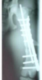 大腿骨骨折 荒川区 台東区 日暮里動物病院