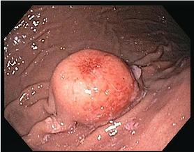 胃がん 犬 荒川区 日暮里動物病院