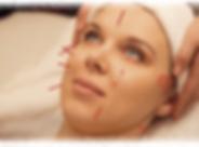Facial Rejuvenation Acupuncture, Cosmetic Acupuncture