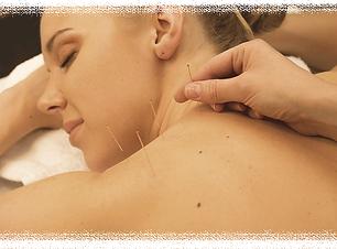 Acupuncture Services