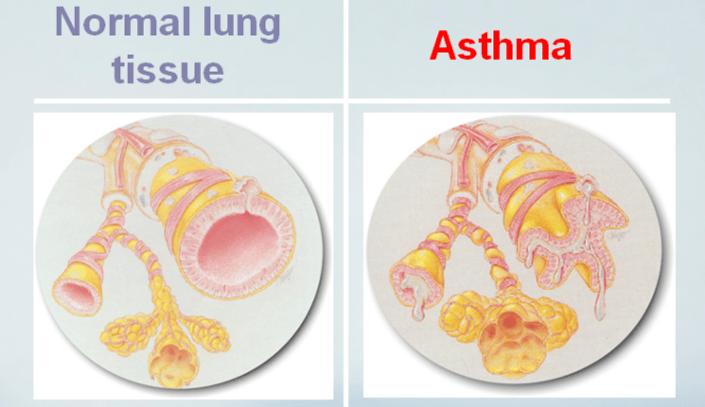 Asthmatic-Airways