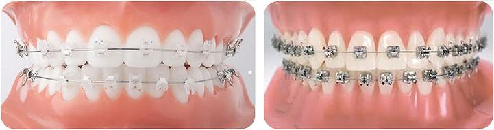 Aparelhos-Ortodonticos-Auto-Ligado-Jundi