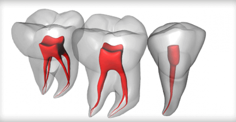 Root-Canal-Treatment-.png