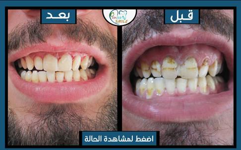 عبد-الجبار.jpg