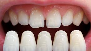 ما هي قشور الأسنان أو ال veneer ؟