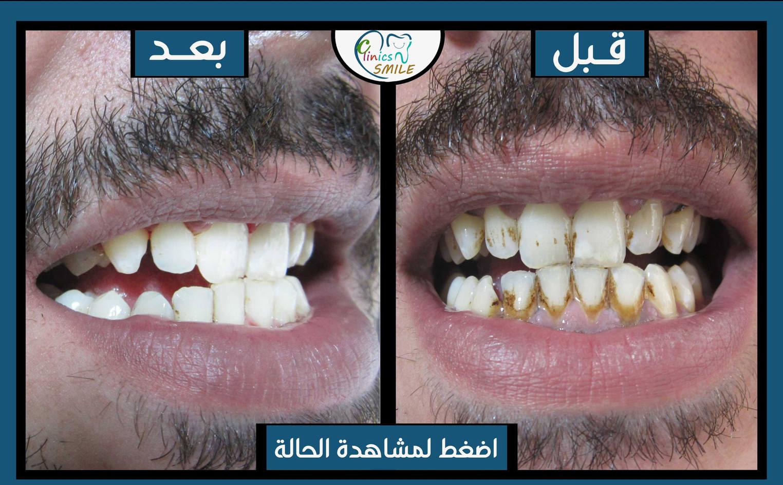 أحمد-باكير.jpg