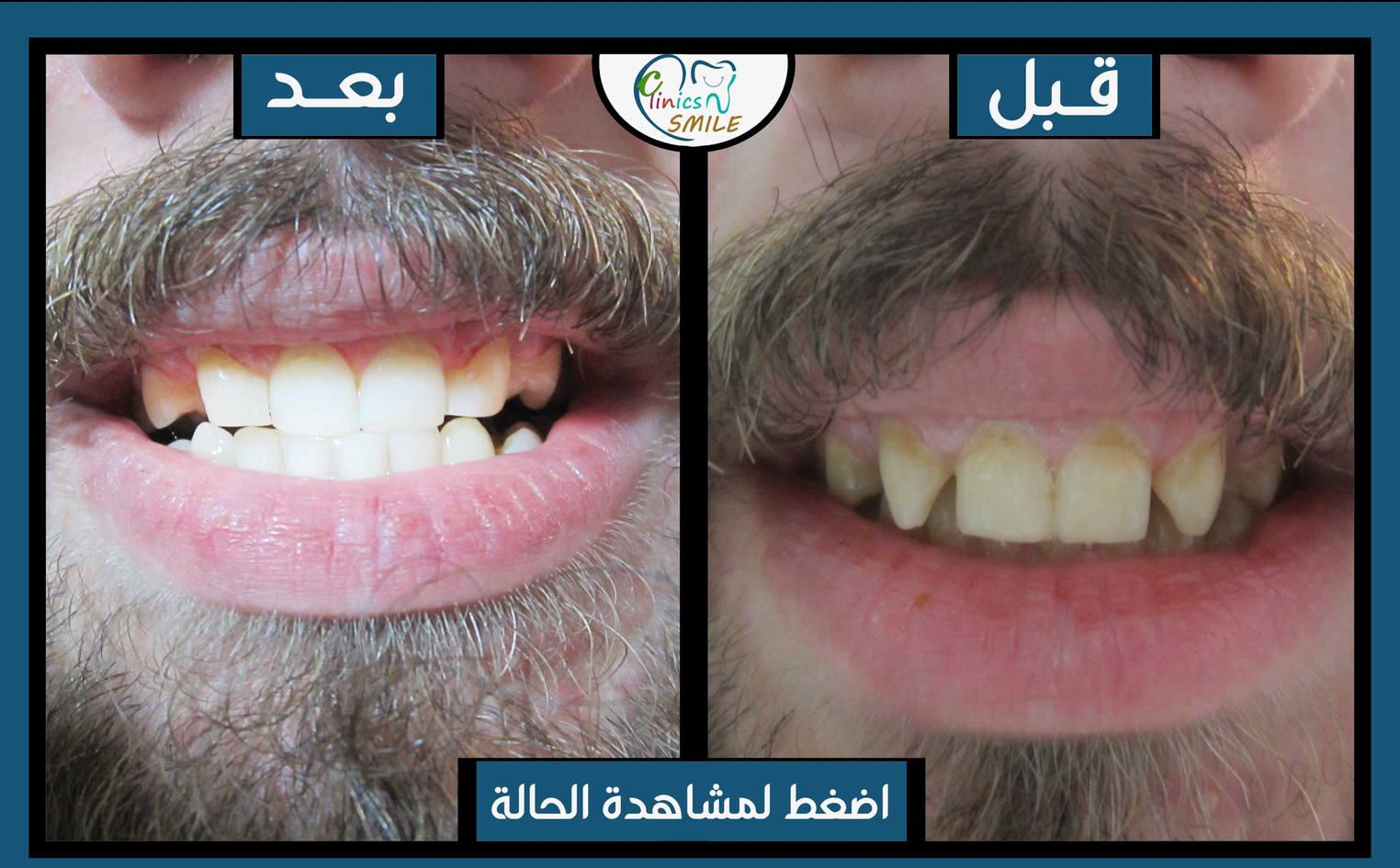 أحمد-علي-السراج.jpg