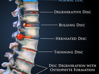 What is a Disc Bulge?