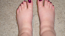 Managing Swelling Feet, Ankles and Legs During Summer.