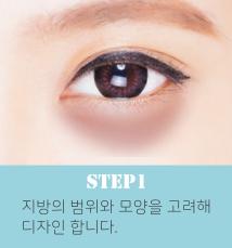 눈밑지방재배치수술방법1.png