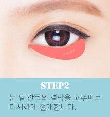 눈밑지방재배치수술방법2.png