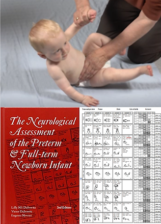 Infant, neurologic exam, Dubowitz, HINE, Hammesmith