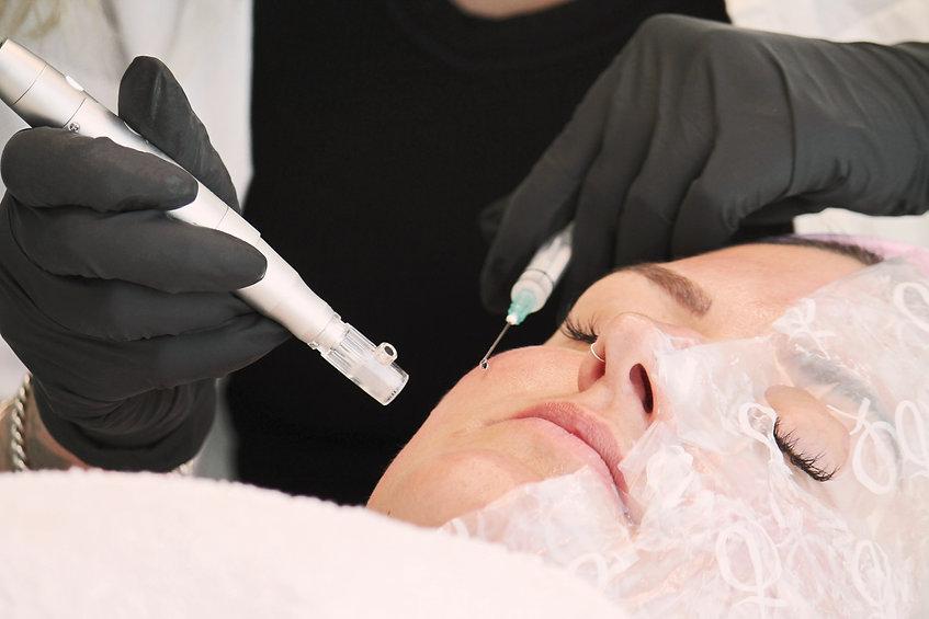 Medical Needling Behandlung