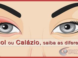 Terçol ou Calázio, saiba as diferenças.