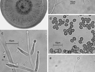 Características de Trichoderma harzianum, como agente limitante en el cultivo de hongos comestibles