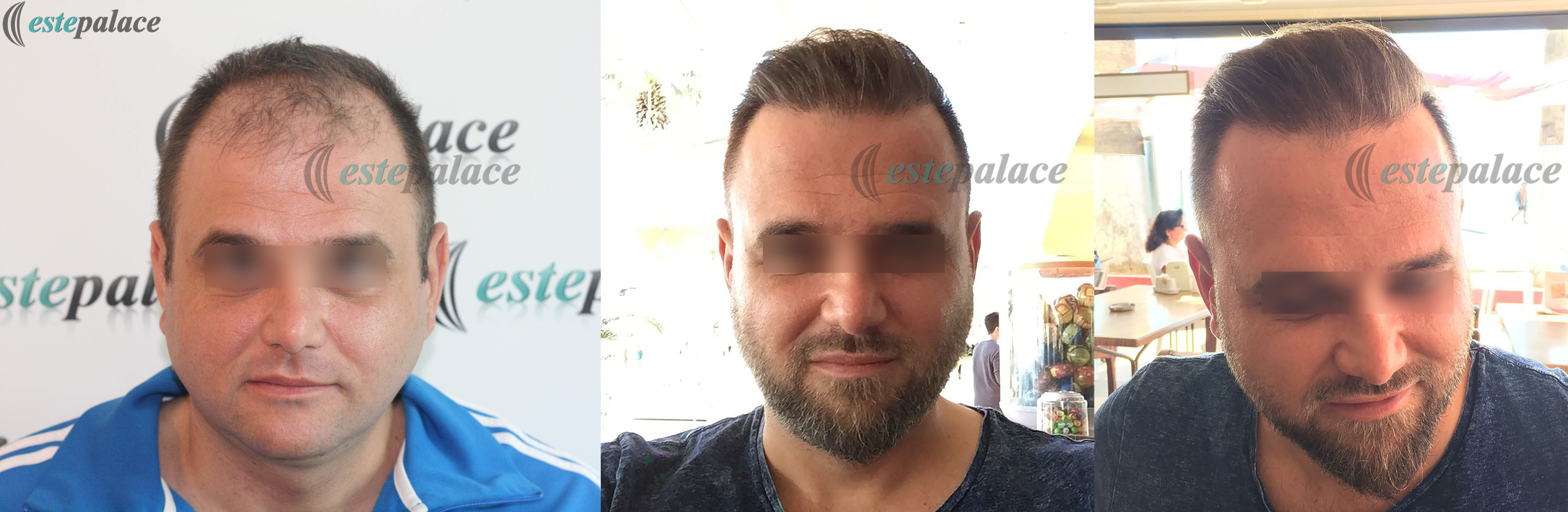 N.T.Before-After8Months