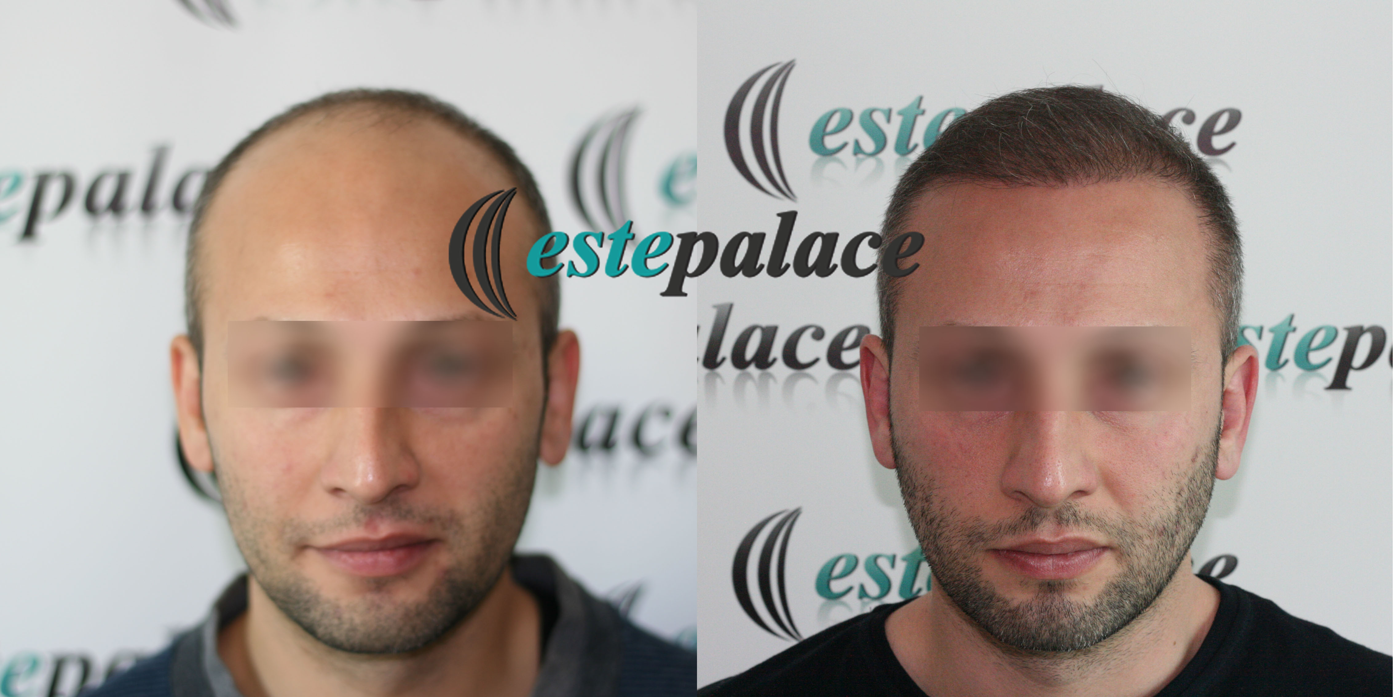 M.Y.Before-After12months