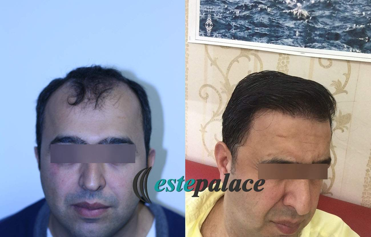 E.Y.Before-After9Months