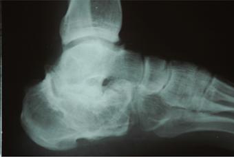 Arthrose nach Bruch des Fersenbeines