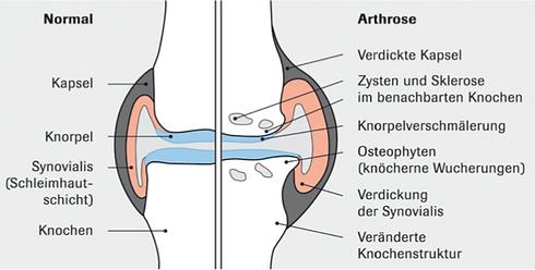 Arthrose Schema