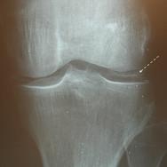 Auch Kristallablagerungen (Chondrocalcinose) können arthroskopisch angegangen weden.