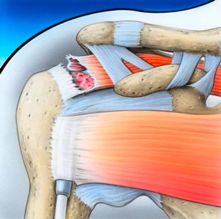 Schulter 5.jpg