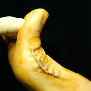 Gelenksprothese