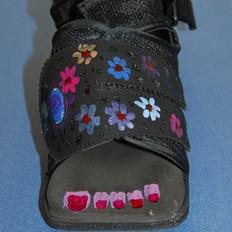 Darco-Schuh - 4-6 Wochen